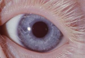 Individuals with albinism often have pale blue eyes and white eyelashes.