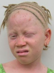Individuals with Albinism often have high light sensitivity called Photophobia.