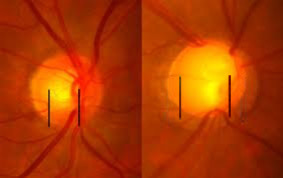 A normal optic nervehead in the left picture. IIn glaucoma the optic nerve fibers atrophy causing the optic cup (the white area in the center of the nervehead depicted by the black lines) to become larger.