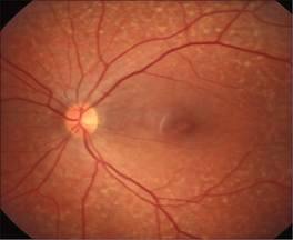 Fundus Flavimaculatus, a form of Stargardt's Disease which presents with flecks lipofuscin (lipid rich waste deposits) distributed throughout the retina.
