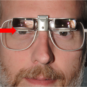 SightScope mounted in bioptic position- arrow shows position of pupil